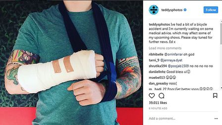 Screen grabbed image taken from the Instagram feed of Ed Sheeran of his arm in a cast after he told