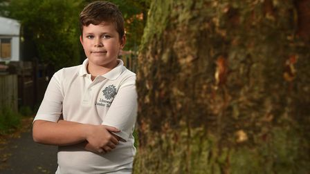Reece Barber, 10, who fell out of a tree and got some wood stuck in his leg.Picture: ANTONY KELLY