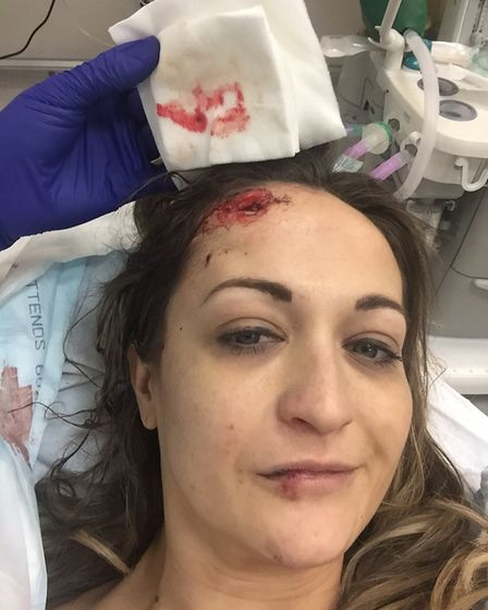 Senior account director Estelle Boon, 32, suffered a fractured skull and broken leg after being hit