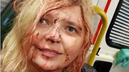 Samantha Colk after she was hit by some debris at the Big Boom event in Norwich Picture Neil Colk