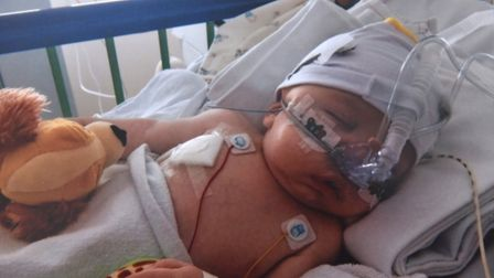 Baby James in hospital. Picture: Thorndyke family..