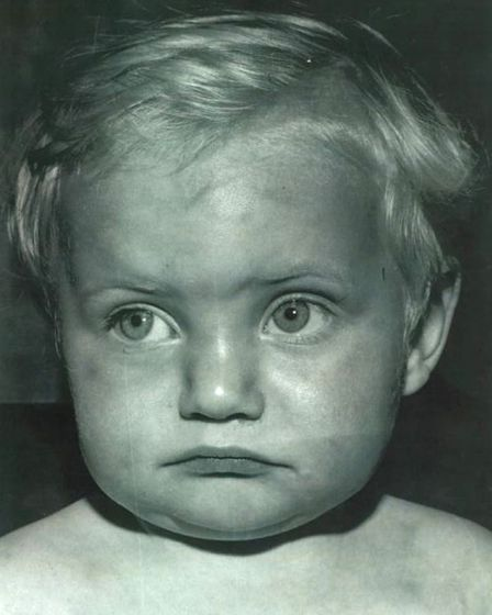 Police photo of Paul Booth taken in September 1968 showing bruising, months before the child died, a