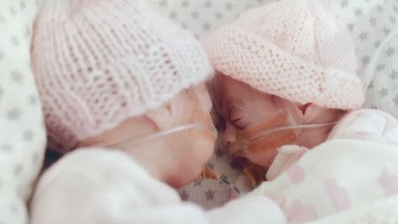 Iris and Esme Wilson at one month old in the neonatal intensive care unit (NICU) at the Norfolk and