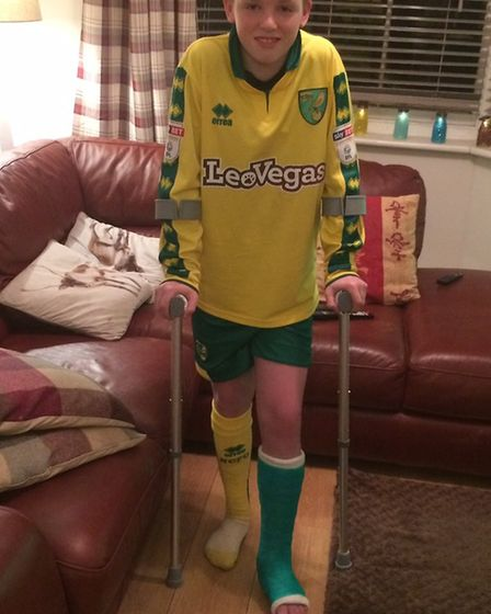 James wearing a Canaries-coloured cast having broken his leg shortly after getting James Maddison's
