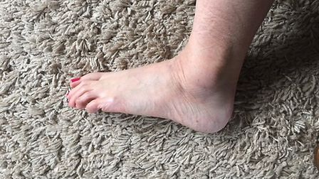 Swelling to PC Laura Harvey's ankle after being dragged down concrete stairs. Picture: PC Laura Harv