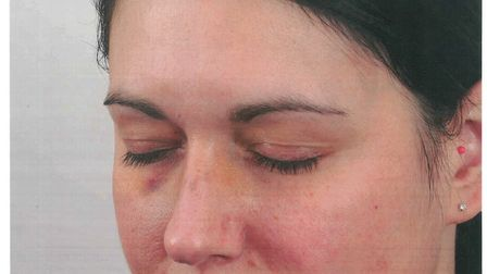Injuries to PC Jo Ford after being assaulted in King's Lynn. Picture: Norfolk Police