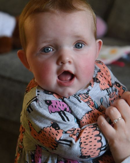 Eight-months-old Esme Ives who has cystic fibrosis, at home in Attleborough. Picture: DENISE BRADLEY