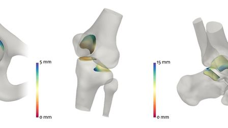 The 3D mapping shows the articular cartilage that coats the ends of bones is worn down. Photo: NNUH