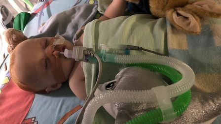 Baby Finley is awaitiing an operation to open his airways at Addenbrooke's hospital, Cambridge Pictu