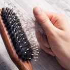 For many cancer sufferers, the idea of losing their hair during treatment feels devestating Picture
