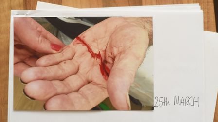 Pictures showing unexplained injuries to Frank Lockey, who died in the Julian Hospital in Norwich. P