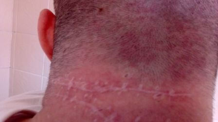 The scars on David Sutton's neck 14 months after the attack. Photo: David Sutton
