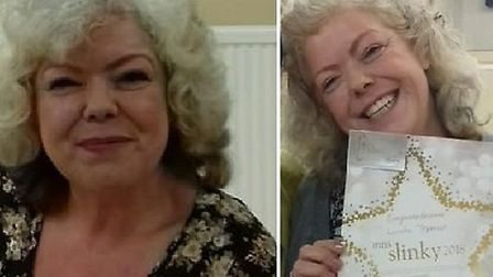 Linda Thomas before and after her weight loss. Photo: Sally Foreman