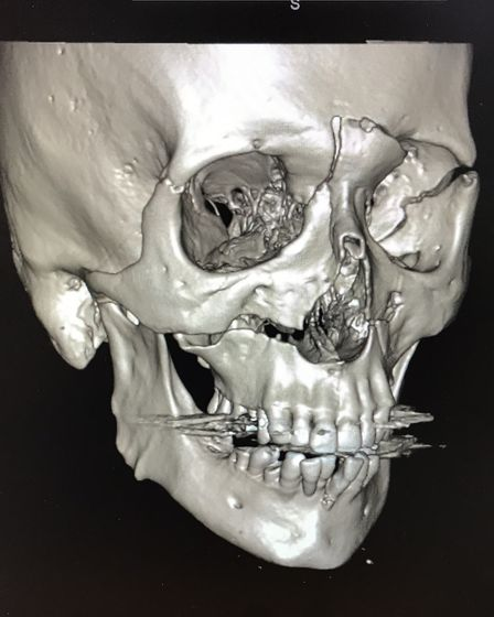 Pre-op CT scan of Martin Bell's skull after his fall. Picture: St George's Hospital