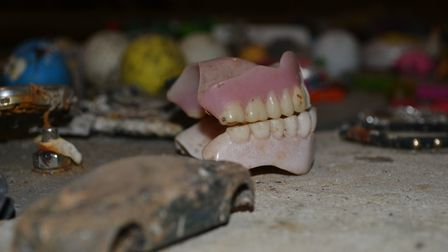 Teeth have been found among the flushed items. Photo: Anglia Water