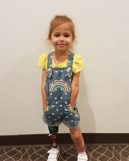 Victoria Komada has undergone surgery to correct her legs after being born with bilateral tibial hem
