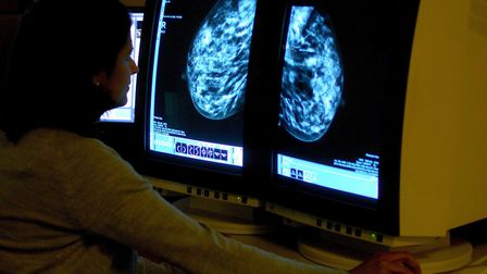 Stock picture of a consultant analysing a mammogram showing a woman's breast in order check for brea