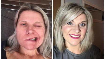 Left, Vhari King after she was hit with Ramsay Hunt syndrome. Right, before. Photo: Vhari King