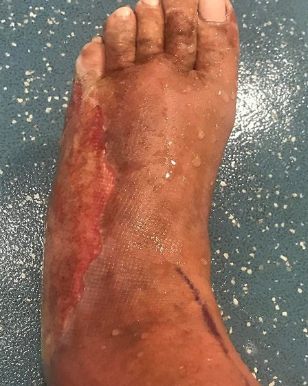 Ruth Jenkins suffered the partial and full thickness burns on the sole and side of her foot after sh
