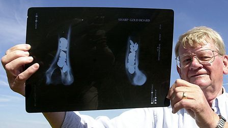 Chris Mackie with the x-ray showing the Iron Age gold staters at Sedgeford, hidden in a cow's bone