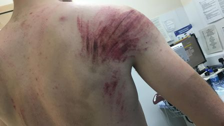 Phil Large was thrown off his bike during a time trial event. Photo: Phil Large