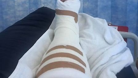 She was taken to hospital after shattering her tibia and fibula. Picture: Contributed by the Chapman