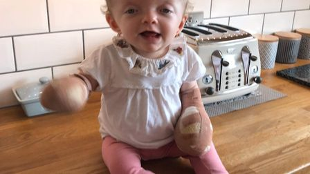 Gracie Wooltorton, who was born with the rare genetic condition Apert Syndrome. PHOTO: Emma Wooltort