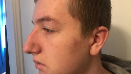 Jack Long, 15, was assaulted outside of his home in Thetford by a group of youths. Photo: Nikki Long