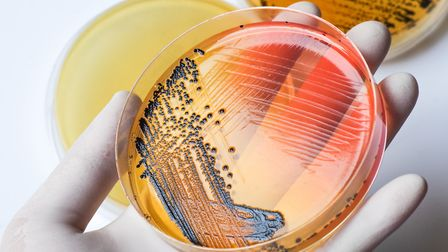 The Earlham Institute has undertaken an analysis of 10,000 Salmonella strains as part of a worldwide