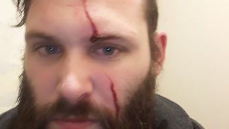 Nathan Murphy was slashed in the face during a knife attack on Lakenham tracks. Picture: Nathan Murp