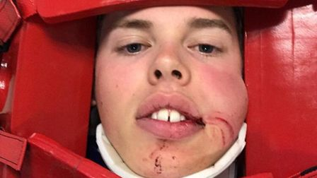 Cyclist Alastair Barrows suffered two broken teeth and facial cuts which needed stitches in the inci
