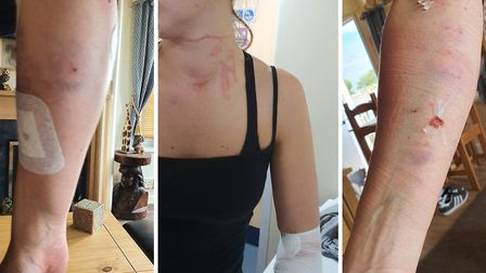 Lynsey Colbert was attacked while trying to prise a dog off of her own pet at Hemsby on Friday. Pict