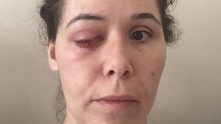 Janna Clark is encouraging people to support Cancer Research UK, after she lost her eye to cancer -