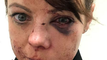 Injuries suffered by Inspector Laura Symonds following attack by Shannon Lovelock. Picture: Norfolk