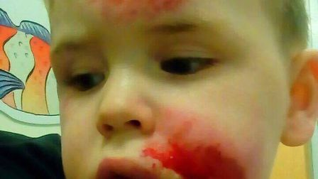 Jaylen Barrett, 3, suffered cuts and swelling after he was hit by a car travelling at 20mph. Picture