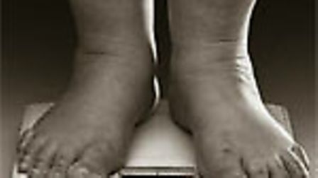obesity-story-6d6755f0-1bfd-47