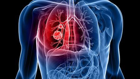 There has been a rise int he number of women diagnosed with lung cancer in East Anglia