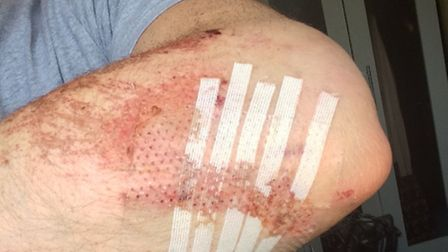 Chris Matthews' injuries after a car was involved in a colliison with his bike and failed to stop.