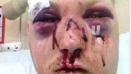 David Gibson who suffered fractures to his nose, skull and both eye sockets