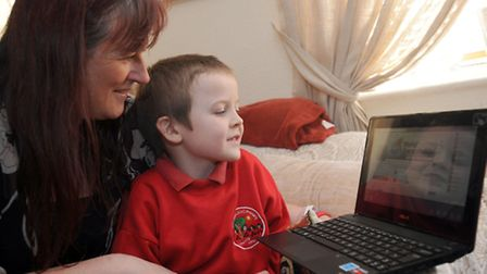 Joshua Brooks (5) suffered a brain injury after getting chicken pox encephalitis. Joshua is pictured