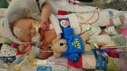 Ellie Colman, who underwent emergency treatment after her birth. PHOTO: Colman Family