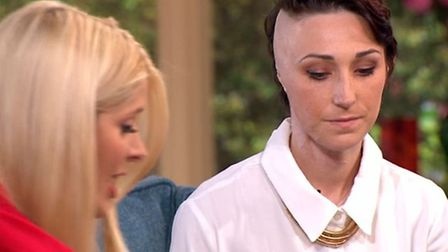 23-year old acid attack victim Adele Bellis who has spoken bravely about her horrific ordeal on This