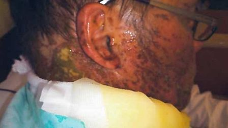 Wayne Ingold received these shocking injuries when he was the unintended victim of an acid attack.