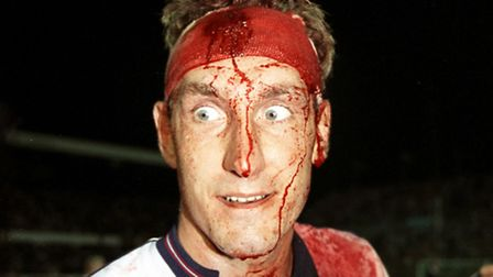 Terry Butcher is left bloodied and scarred after the World Cup Qualifier against Sweden. Picture: Da
