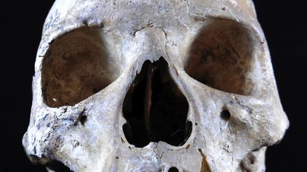 A pre-Norman skull unearthed in a garden in Hoxne, Suffolk, which was found to have been infected wi