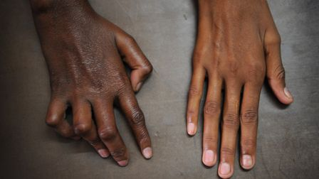 The hands of a person affected by 'claw hand' caused by leprosy. Picture: SIMON RAWLES