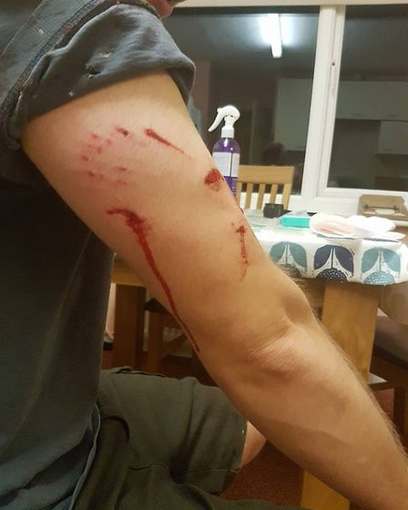 Paul Baker's wounds after the dog attack near Mendlesham. Picture: MELISSA COTTER
