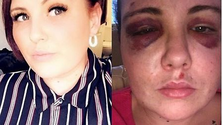 Lacey Knight before and after she was assaulted in a Clacton nightclub. Picture: ESSEX POLICE