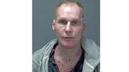 Vytis Grigatitis, who has been jailed for 14 years after trying to set fire to his wife . Picture: S