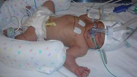 Lilee, who is now seven-years-old, was born with GBS Picture: SUPPLIED BY FAMILY